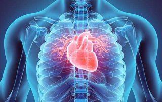 Heart Arrythmias